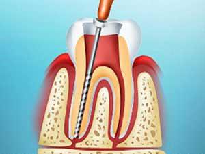 Лечение пульпита зубов