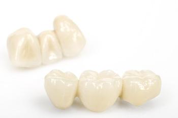 Несъемное протезирование зубов коронками