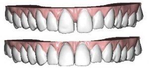 Зубная ортодонтия
