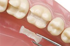 Новое в стоматологии Красносельского района - микропротезирование керамическими вкладками