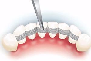 Шинирование зубов в стоматологии Премьера
