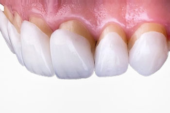 Микропротезирование зубов винирами